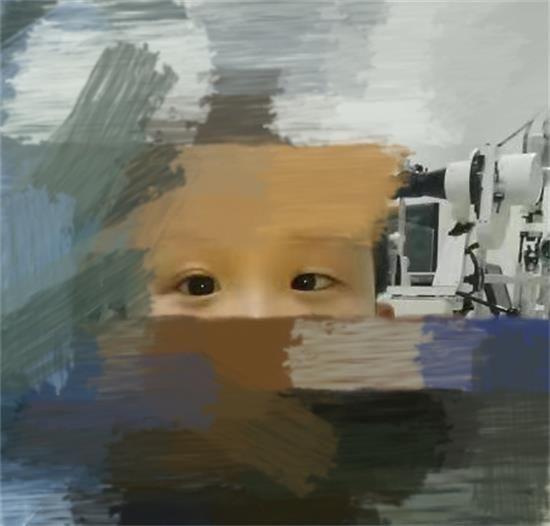 3岁孩子确诊斜弱视 视力从0.03提升到1.0 郑州童瞳眼科是怎么做到的?